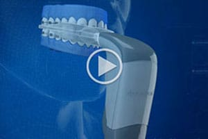 Acceledent Videoat Associated Orthodontists in Wausau Marshfield WI