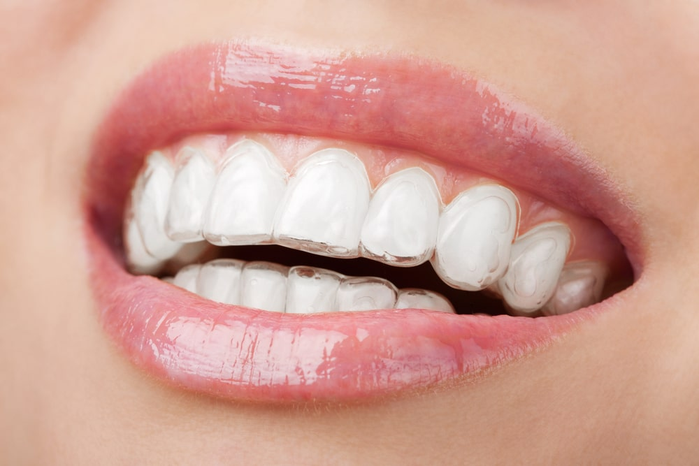 Invisalign Close-Up at Associated Orthodontists in Wausau Marshfield WI