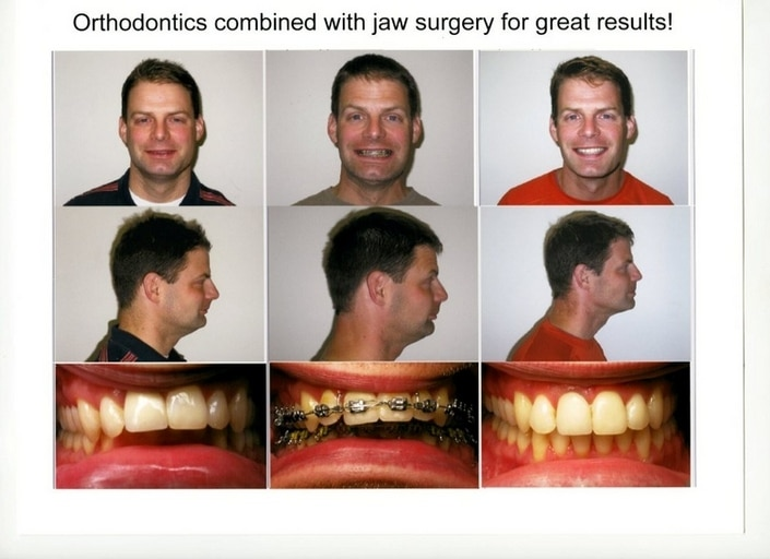 Before and After 1 Associated Orthodontics Wausau Eau Clare and Marshfield WI