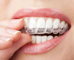 Invisible Braces at Associated Orthodontists in Wausau Marshfield Eau Claire WI