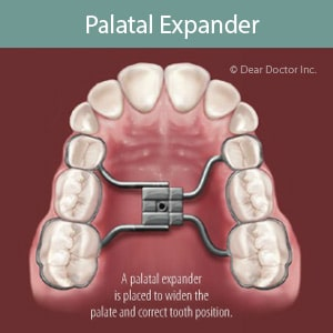 Palatal Expander Graphic at Associated Orthodontists in Wausau Marshfield Eau Claire WI