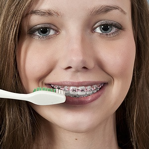 Gum Disease Risk at Associated Orthodontists in Wausau Marshfield Eau Claire WI